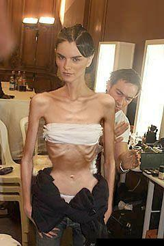 Fotos mostram modelos extremamente magras! O texto que acompanha as