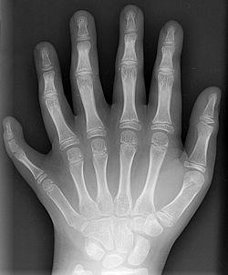 Polidactilia (foto: Wikipédia)
