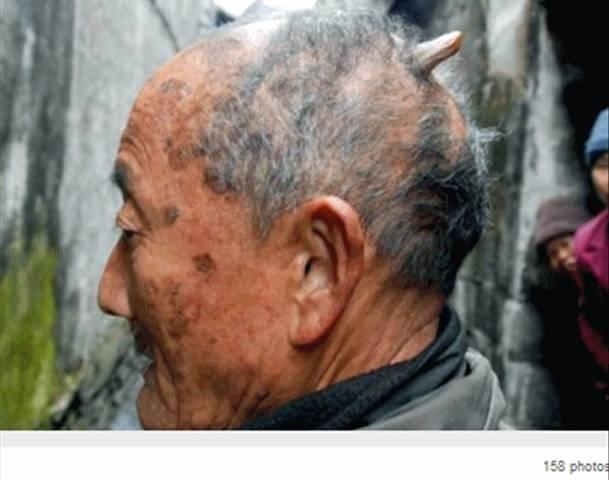 O chinês Huang Yuanfan sofre do mesmo problema! (foto: Divulgação)