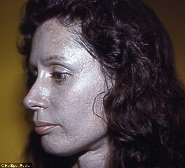 Essa mulher foi tratada por vários anos com um remédio que continha prata em sua composição e sua pele ficou assim, azulada! (foto: Reprodução)