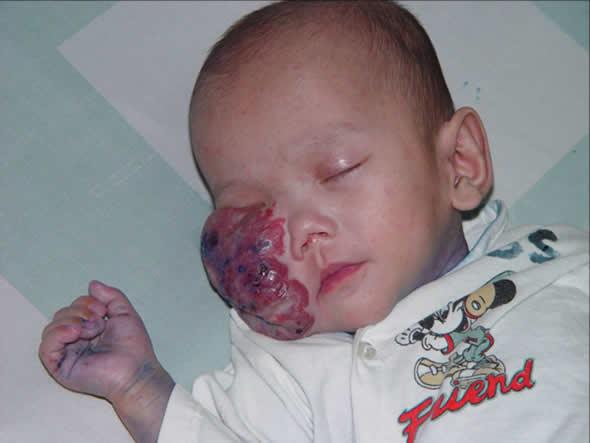 Foto de um bebê com tumor no rosto circula pelo Facebook!