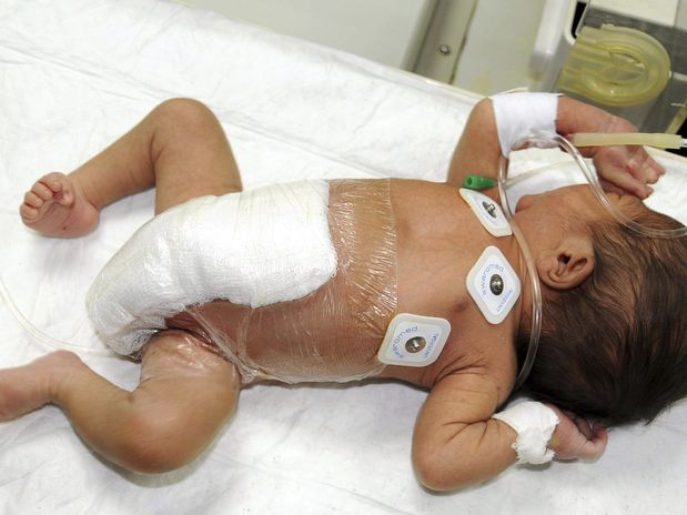Bebê de 6 pernas operado!