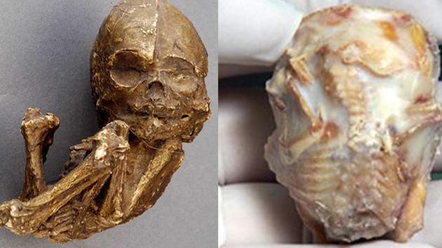 Feto teria virado pedra dentro do corpo da mãe! Verdadeiro ou falso? (foto: Reprodução/Internet)