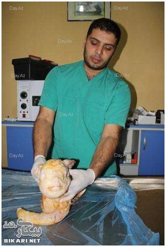 Veterinário mostra o  bicho recém-nascido! (foto: Reprodução/Todayz)