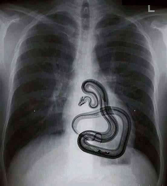 Milagre divino tirou uma serpente da barriga de uma mulher?