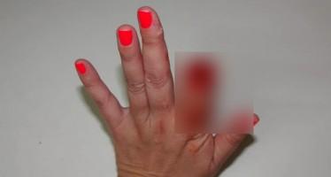 Dentista teve o dedo decepado pela mordida de uma criança! Será verdade? (foto: Reprodução/Facebook)