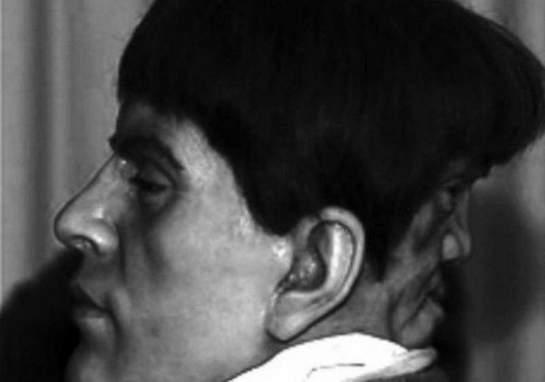 """Edward Mordrake: Será que o """"Homem da Face Demoníaca"""" realmente existiu?"""