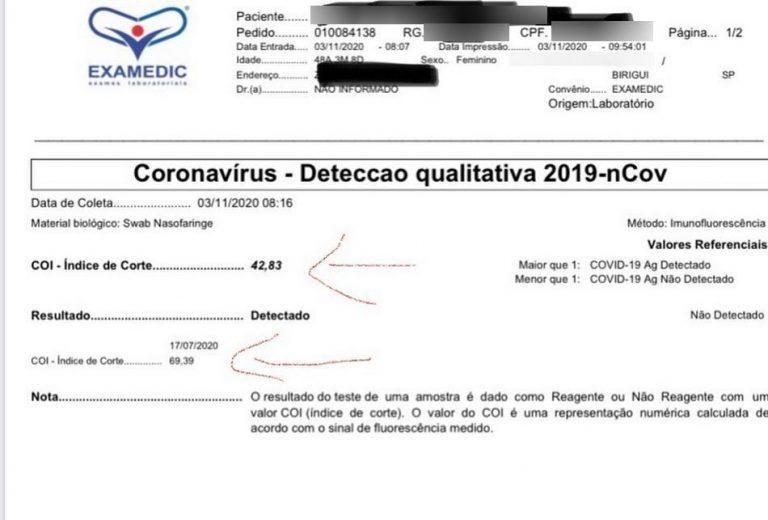 Exame aponta para um caso de reinfecção de COVID-19 em Birigui/SP?
