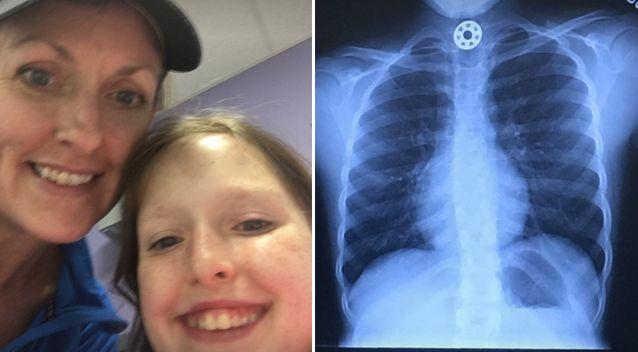 Uma criança quase morreu engasgada com Fidget Spinner?
