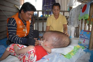 Criança com hidrocefalia pede 3 thai baht para ajudar no seu tratamento!