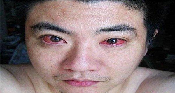 Homem teria ficado com câncer de olho após usar smartphone à noite! Será verdade? (foto: Reprodução/Facebook)