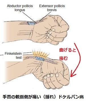 ligamentos2