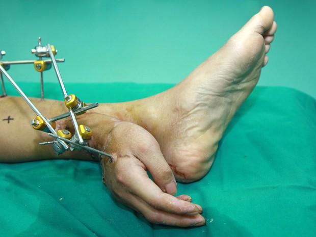 Médicos teriam implantado a mão de um paciente em seu pé! Verdadeiro ou falso? (foto: reprodução)