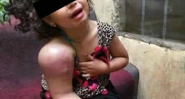 Criança com o braço inchado pede orações no Facebook! Será verdade? (foto: Reprodução/Facebook)
