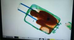 Raio-X revela interior inusitado de uma mala! Será verdade?