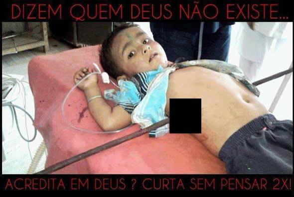 Garoto foi empalado por uma barra de ferro e não morreu! Será verdade? (foto: Reprodução/Facebook)
