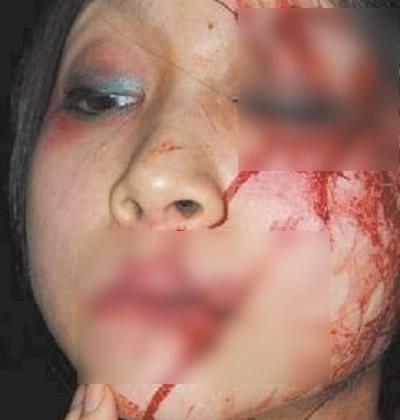 Missionária teve a boca e o olho costurados após pregar o cristianismo! Será? (Foto: reprodução/Facebook)