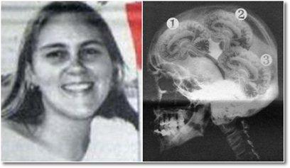 Mulher possui três cérebros! Verdadeiro ou falso?