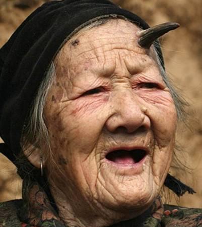 Zhang Ruifang, a chinesa de 100 anos que tem chifre na testa!