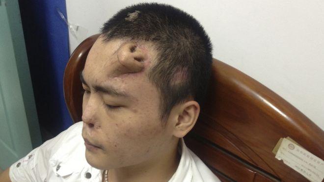 Rapaz tem um nariz implantado em sua testa. Verdadeiro ou falso? (foto: Reprodução/Reuters)