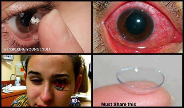 Calor do churrasco teria derretido a lente de contato de uma moça! Será verdade? (fotos: Reprodução/Facebook)
