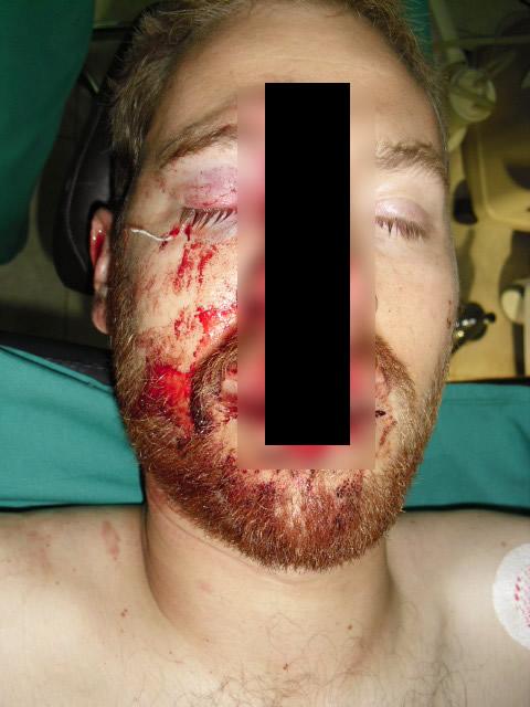 Foto que circula pelas redes sociais mostra suposto acidente de Paul Walker! Verdadeira ou falsa? (foto: Reprodução/Facebook)