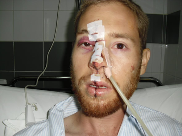 Alan Dennis dias depois de sofrer o acidente! (foto: Divulgação/Africa Stories)