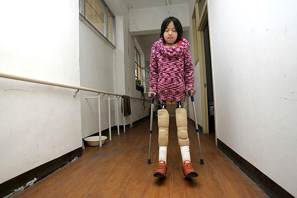 Qian Hongyan, agora com as próteses!