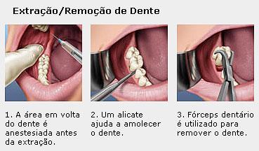 remocao_e_extracao_de_dentes