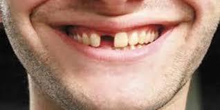 Vítima quebra os dentes do ladrão e tem que pagar a prótese!