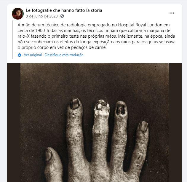 Foto mostra uma mão de um radiologista destruída por raios X! Será verdade?